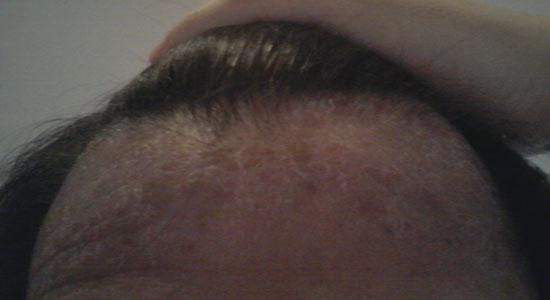 アトピー/脂漏性皮膚炎 改善前