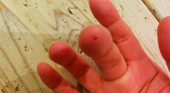 バンドエイドを外すと薄皮ができて傷が治っていた2