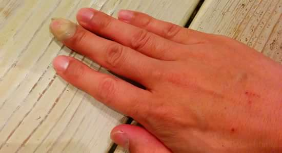怪我をした中指に絆創膏をまいているところ(手全体)
